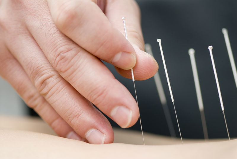 Welcome to South Florida Acupuncture Coral Springs